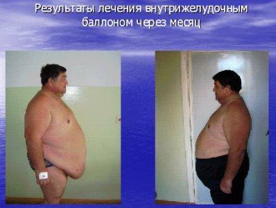 Как похудеть за неделю на 5,7,10 кг и убрать живот в домашних условиях без вреда
